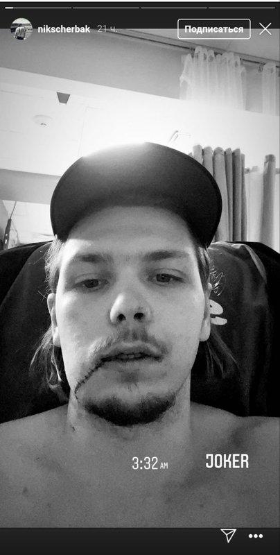 «Джокер». Российскому хоккеисту Щербаку разорвало щеку во время матча АХЛ