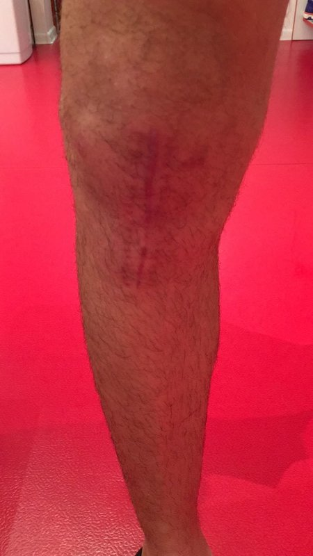 Как прямо сейчас выглядит колено Романа Зобнина