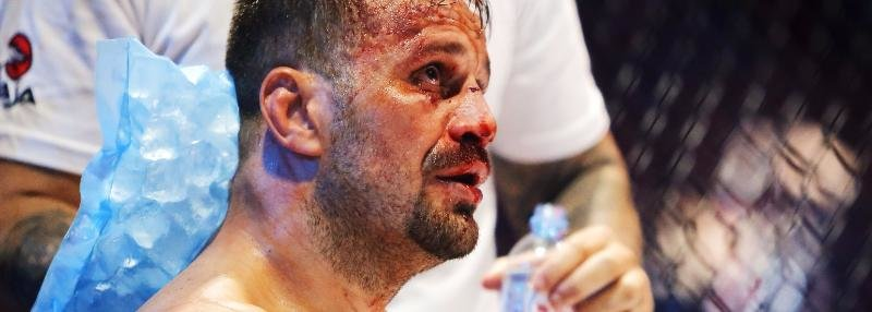 «Этот русский – жесткий». Мальдонадо показывает повреждения после боя с Емельяненко