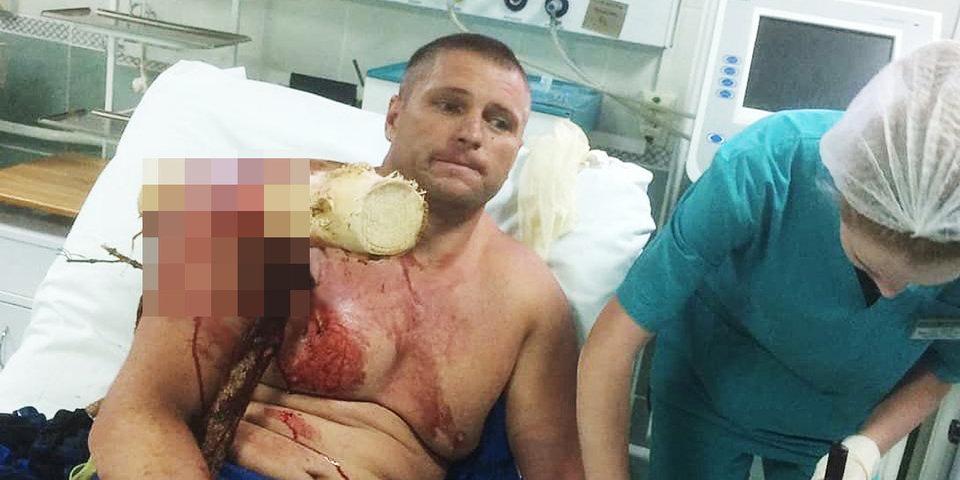 Экстремал упал на дерево - плечо пробило насквозь. Через 72 часа он дал интервью «Матч ТВ»