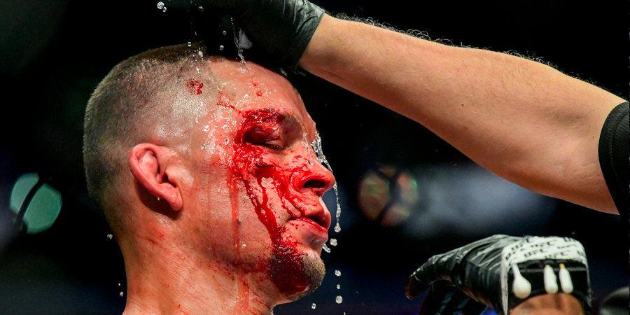 Диас потерял две позиции в рейтинге полусредневесов UFC после поражения от Масвидаля