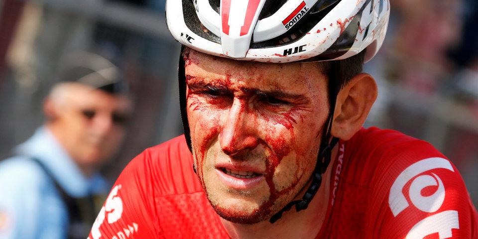 Он вам не Неймар. Считаем потери первой недели «Тур де Франс»
