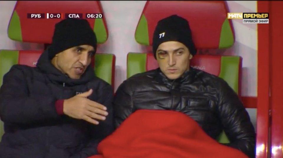 Азмун смотрит матч «Рубин» – «Спартак» со швами на лице