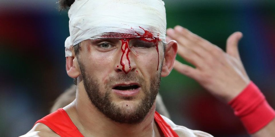 Кровь, бинты, борьба. Фотографии, которые вы точно не забудете