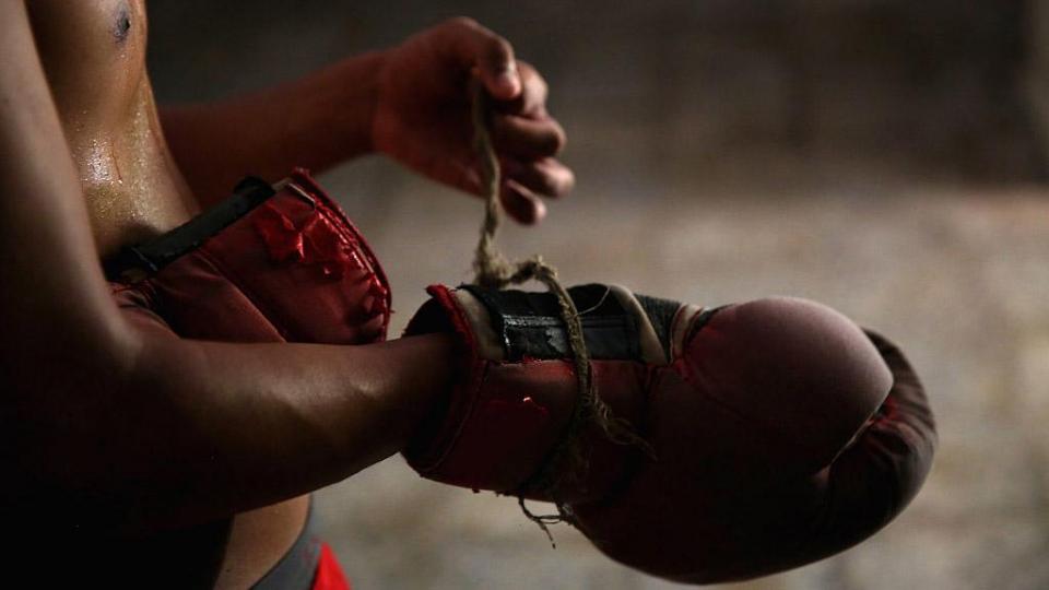 Российский боксер Дадашев находится в критическом состоянии после боя с Матиасом