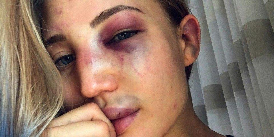 Анастасия Янькова фотографирует себя после боя