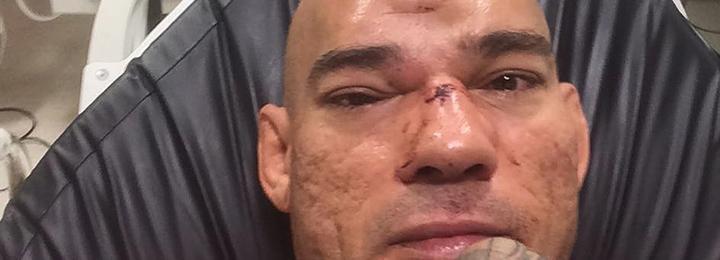 Очень страшная травма на турнире Bellator в Лондоне
