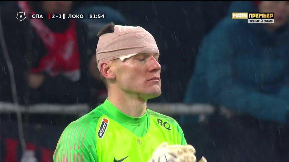 Ребров продолжил матч с «Локомотивом» с травмой головы