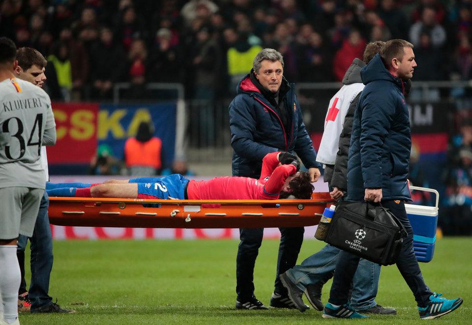 Защитник ЦСКА Фернандес избежал перелома скулы